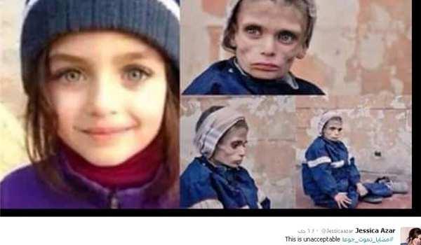 Чудовищная ложь западных и арабских СМИ о Сирии: трупы, изувеченные дети и голод в Мадайя (ФОТО) | Русская весна