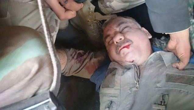 СРОЧНО: Боевики опубликовали кадры захваченного пилота сбитого Су-22 ВВС Сирии (ФОТО, ВИДЕО) | Русская весна
