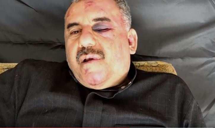 Боевики опубликовали новое видео избитого пилота Су-22ВВССирии (ВИДЕО) | Русская весна
