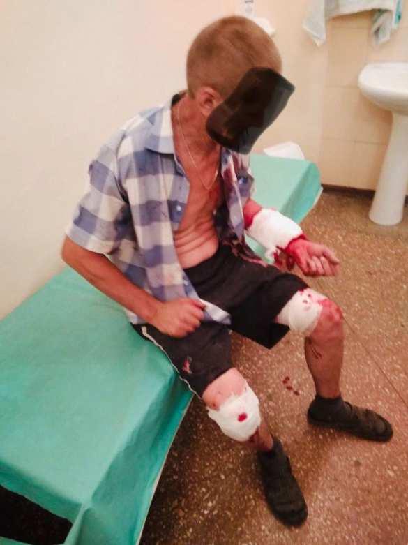 ВСУ нанесли удар по Зайцево, ранен мирный житель (ФОТО) | Русская весна